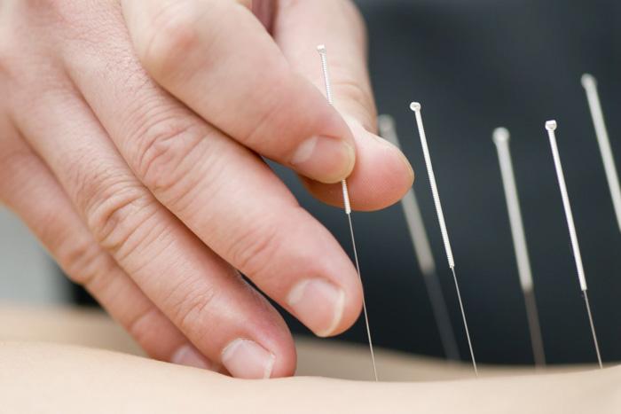 Acupuncture Asheville